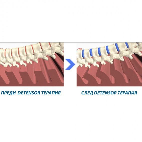Терапевтична система Detensor 18% - DETENSOR 7